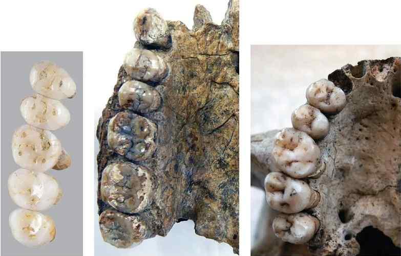 Gigi manusia purba