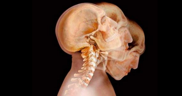 Subhanallah! Inilah Pengaruh Alquran Pada Syaraf, Otak dan Tubuh Anda