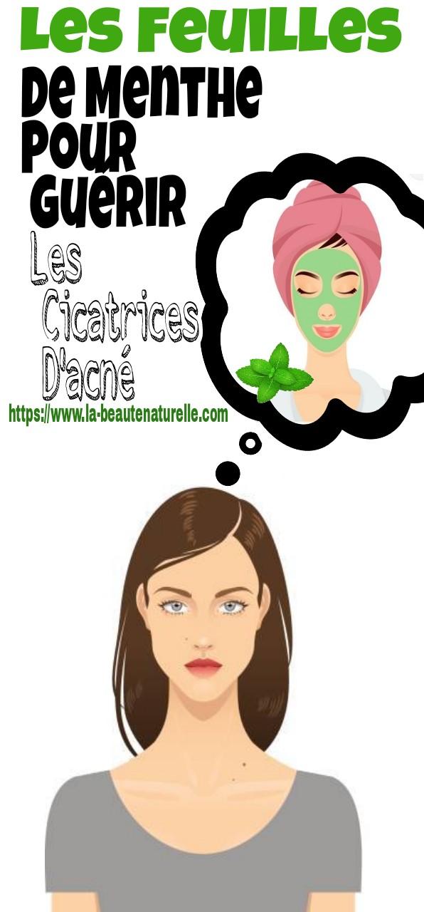 Les feuilles de menthe pour guérir les cicatrices d'acné