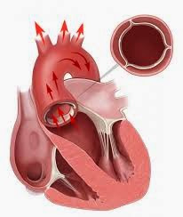 Jantung bocor