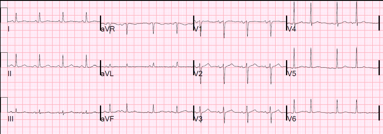 Amal Mattu's ECG Case of the Week – January 11, 2016 – ECG ...