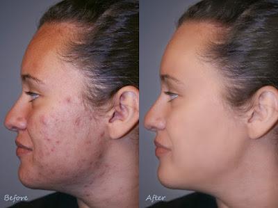 Éliminer les taches d'acné avec des remèdes maison