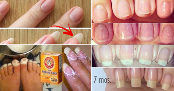 The Magic Of 3 Ingredients to Restore Beauty To Your Nails, The Result Is lightning Speed