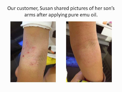 Before and After Image of Implementing Emu Oil