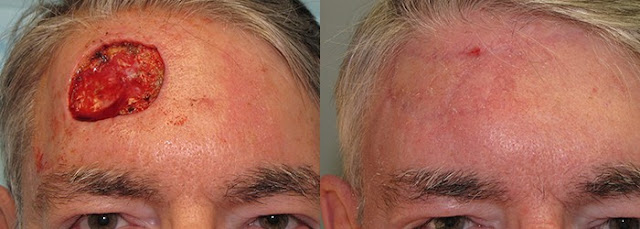 skin cancer on forehead treatment