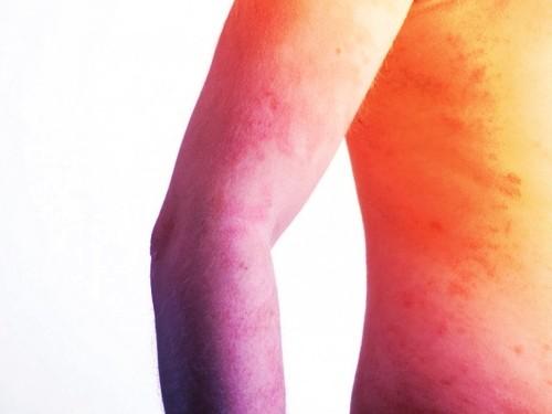 Causas de la Psoriasis en el Cuerpo