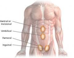 Jenis-Jenis Penyakit Hernia
