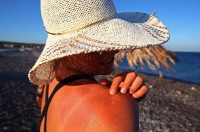 protegerse de los rayos solares durante el verano
