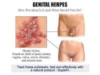 Obat Herpes di Kemaluan Pria dan Wanita Terjamin Ampuh