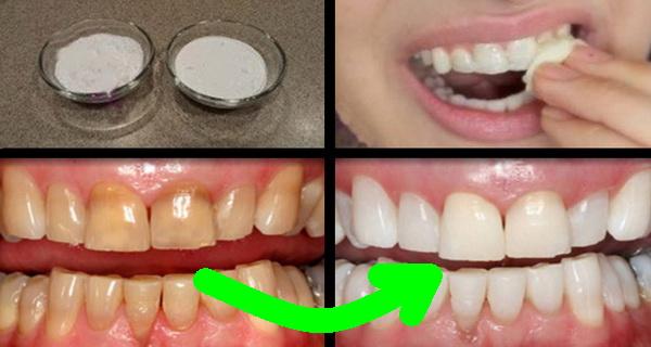 albeste-ti dintii in doar doua minute