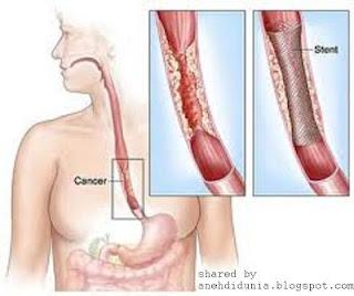 Kanker Esophageal