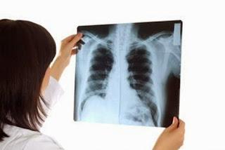 Cuidados para fractura de costillas