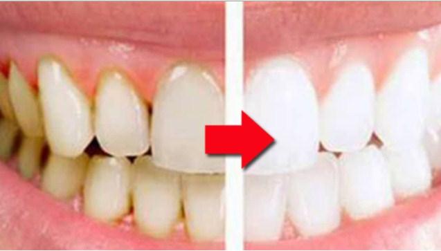 Cara Membersihkan Karang Gigi Sendiri Alami Kupasti Sukses