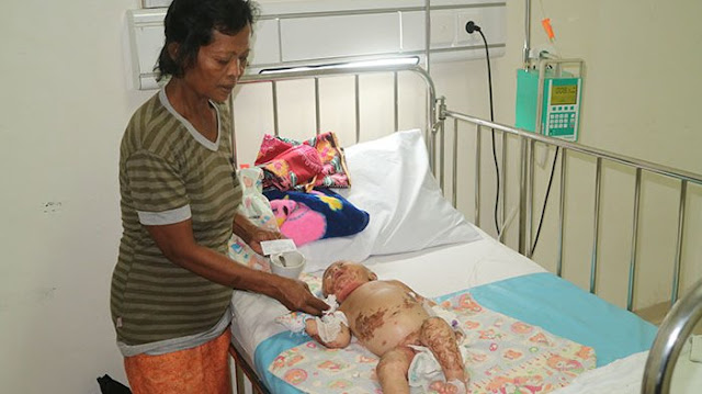 Bayi Gizi Buruk Ini 3 Kali Dibanting Ibu yang Mengalami Gangguan Jiwa dan Ayah pun Tak Berdaya.