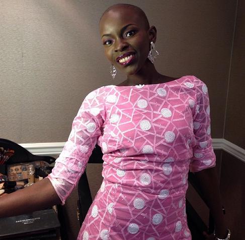 Debbie Idiagbonya Osarere bone cancer