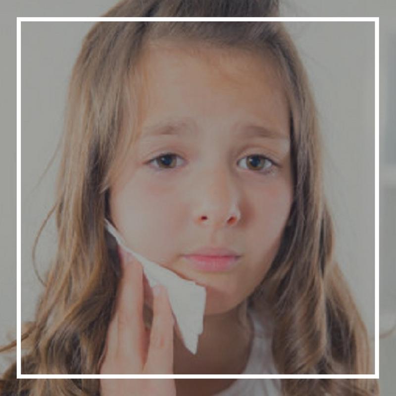 Bahaya sakit gigi pada anak