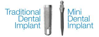 http://chennaidentalimplantsclinic.com/mini-dental-implants/