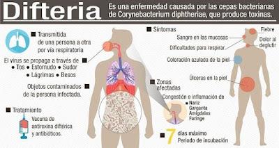 ¿Que es la Difteria?. Situación en Venezuela. Epidemiología.