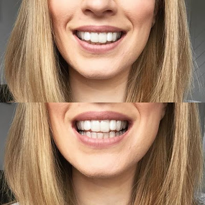 Invisalign, clear aligners