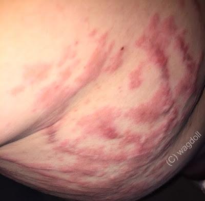 severe skin rash PUPPs