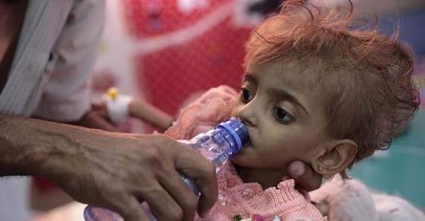 Unos 85.000 niños han fallecido de hambre en Yemen en los últimos cuatro años