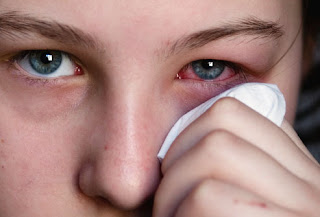 How to Care for Conjunctivitis
