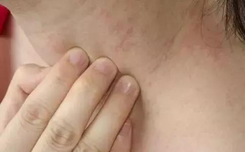 皮膚過敏,主要和肺、脾、腎這三個部分有關(皮膚瘙癢)