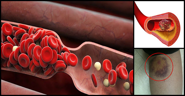 6 Best Natural Blood Thinners That Prevent Blood Clot Dr