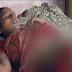 Φρίκη: Πεθερά έριξε οξύ στην έγκυο νύφη της επειδή δεν ήθελε να κάνει άλλη κόρη!