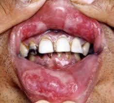 Sipilis di lidah