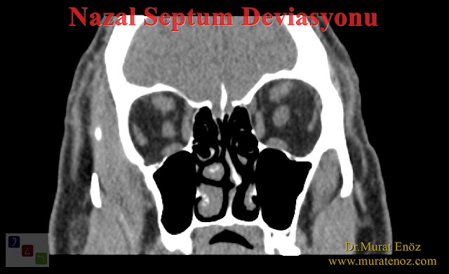 Deviasyon ameliyatı sonrası burnu korumak gerekir mi? - Deviasyon operasyonu sonrası burnu korumak gerekir mi? - Burunda kıkırdak eğriliği ameliyatı sonrası burnu darbeden korumak gerekir mi? - Burunda kemik eğriliği ameliyatı sonrası burnu korumak gerekir mi?