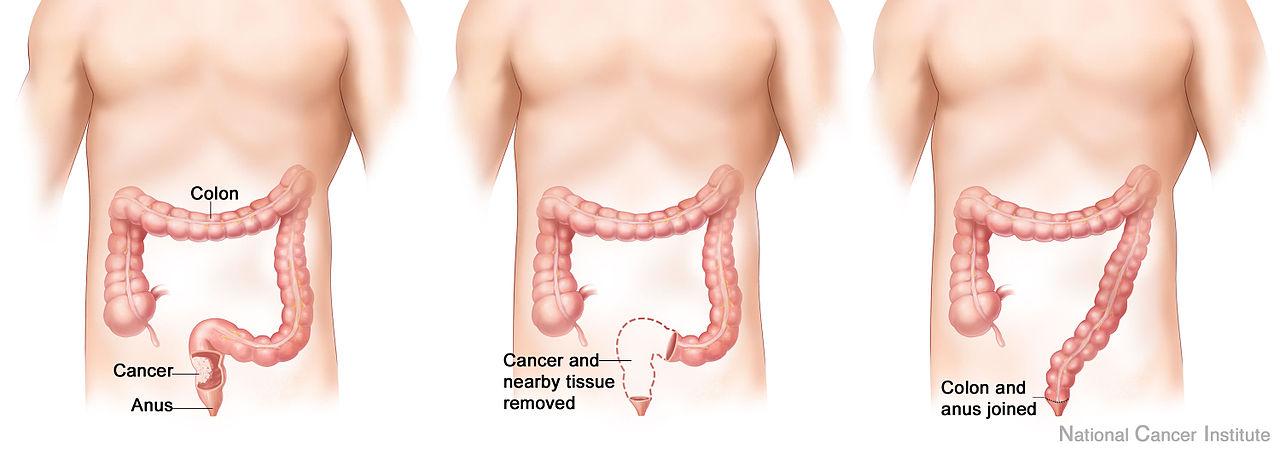 عوامل الخطر لسرطان القولون