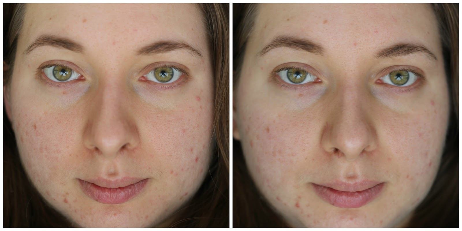 Paula's Choice Calm Redness Relief Kit Before After