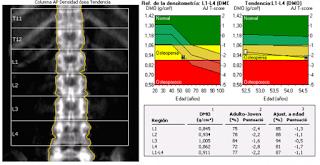 dmo dxa osteoporose résultat interprétation