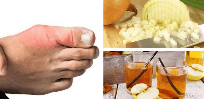 remedios para curar la gota y el ácido úrico