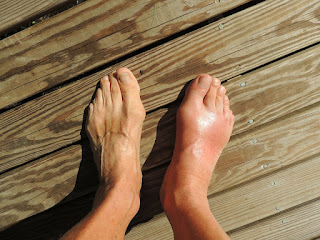 Symptoms, causes and treatment of Gout disease