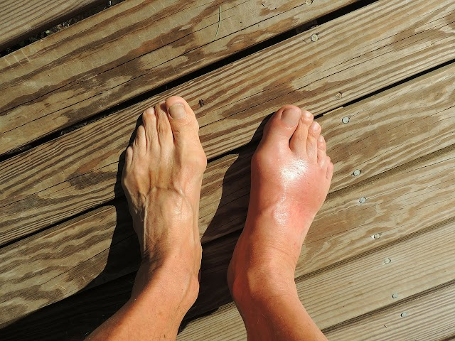 Symptoms, causes and treatment of Gout (Arthritis)
