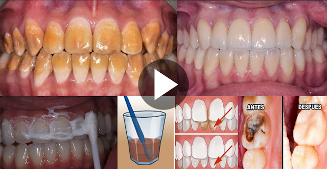 How To Eliminate Tartar And Plaque And Get White Teeth In 15 Minutes