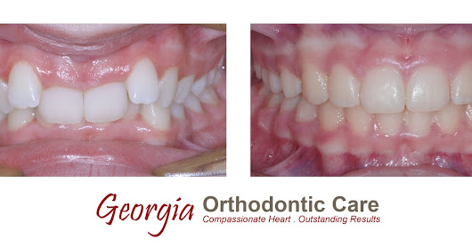 Class II division 2 treated without extraction, Georgia Orthodontic Care, Lawrenceville & Norcross, 30043