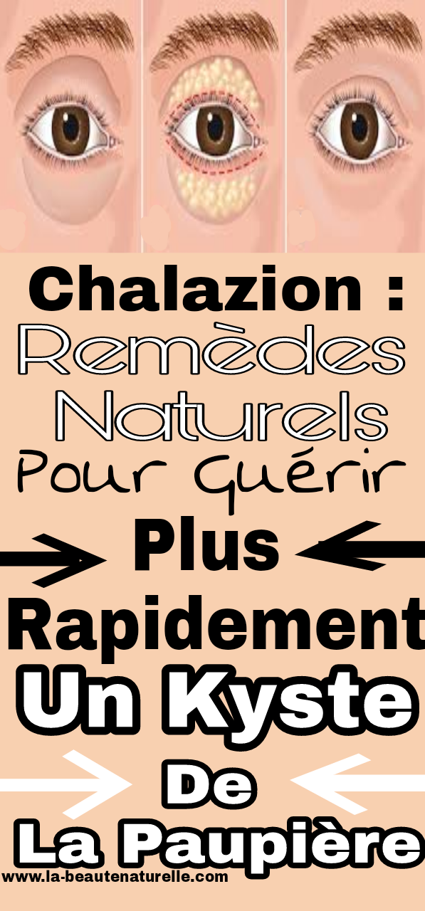 chalazion : Remèdes naturels pour guérir plus rapidement un kyste de la paupière