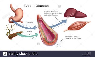 kerintangan insulin