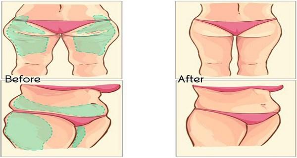 remove fat