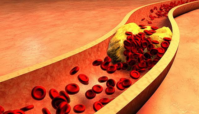 alimentele care desfunda arterele