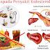 Titik Bekam Kolesterol