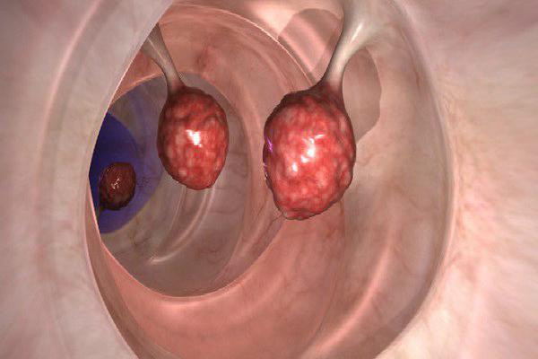 Врачи шокированы: это уменьшает количество раковых клеток на 93 % всего за 2 дня!