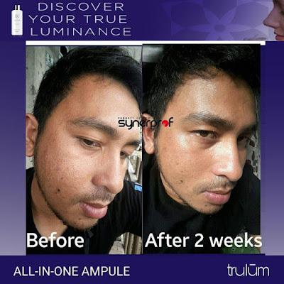 Jual Obat Penghilang Jerawat Trulum Skincare Dago