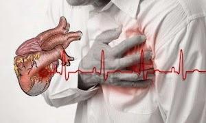 Cara Mencegah Resiko Kematian Akibat Serangan Jantung