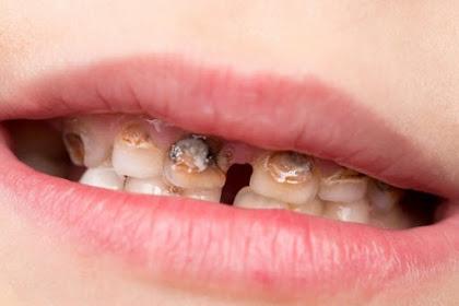 Penyebab Gigi Keropos dan Cara Mencegahnya