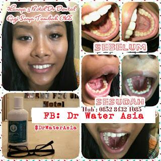 Cara Merawat kesehatan gigi dan mulut dg Dr + dental care liquid
