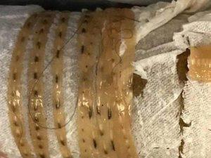 Buongiornolink - Mangia sushi e si ritrova nello stomaco una tenia lunga oltre 1,5 metri